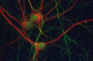 Imagen de un cultivo primario neuronal con detección del marcador de dendritas MAP2 (rojo) y del marcador de axones Neurofilament (verde). / UB